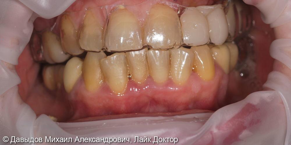 Одномоментная имплантация. Горизонтальная костная пластика - фото №11