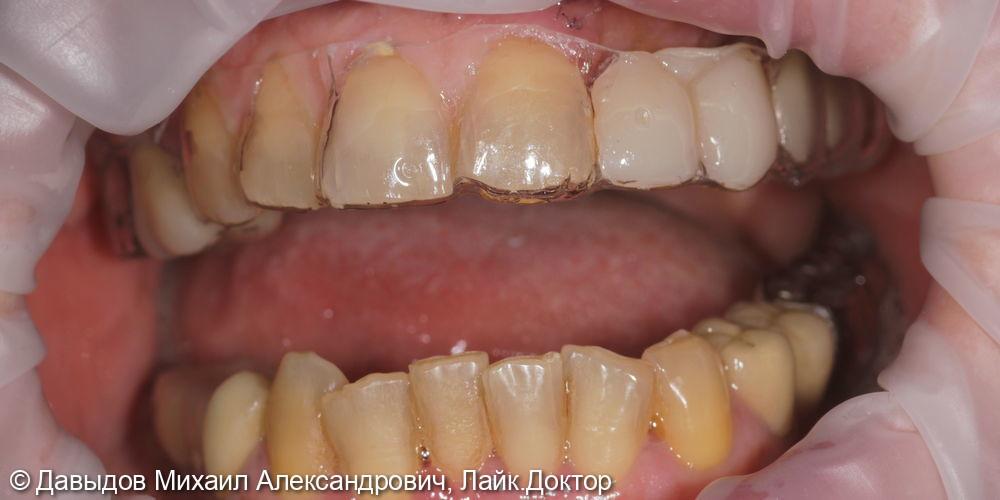 Одномоментная имплантация. Горизонтальная костная пластика - фото №12