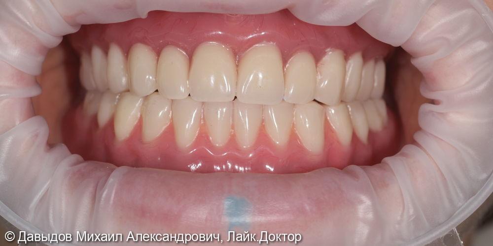 Протезирование бюгельным протезом с замковобалочной фиксацией на 4х имплантах ICX ( Германия) на нижней челюсти и изготовление временного полного сьемного протеза на верхней челюсти - фото №13