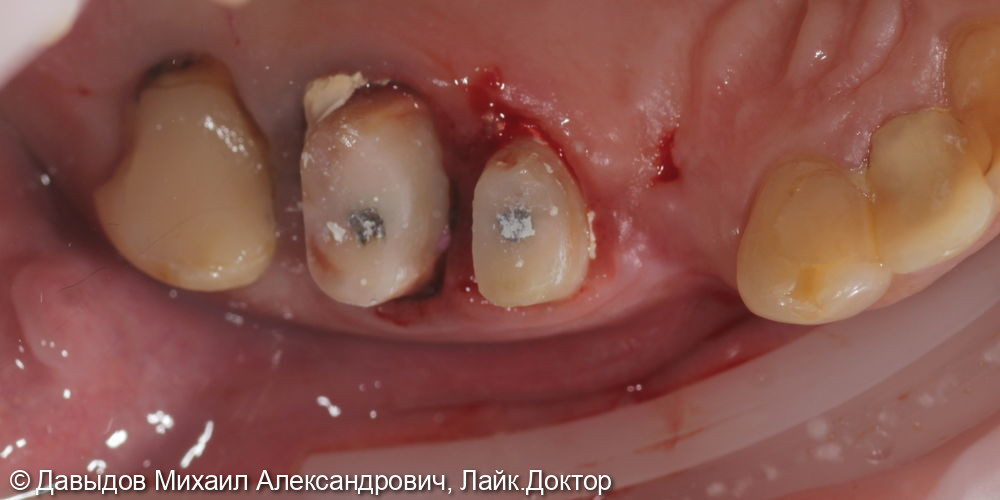 Одномоментная имплантация зуба 17, имплантация 14, временная реабилитация - фото №1