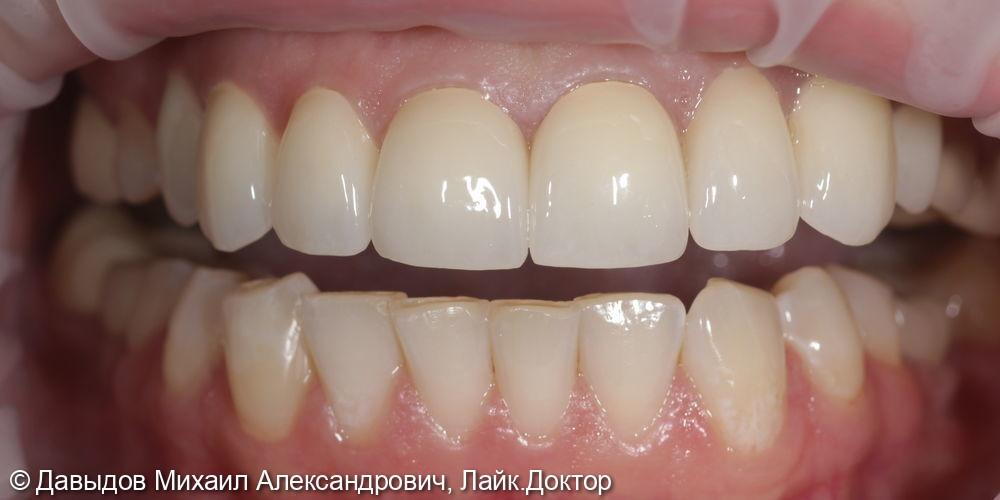 Протезирование коронками из диоксида циркония в полную анатомию - фото №6