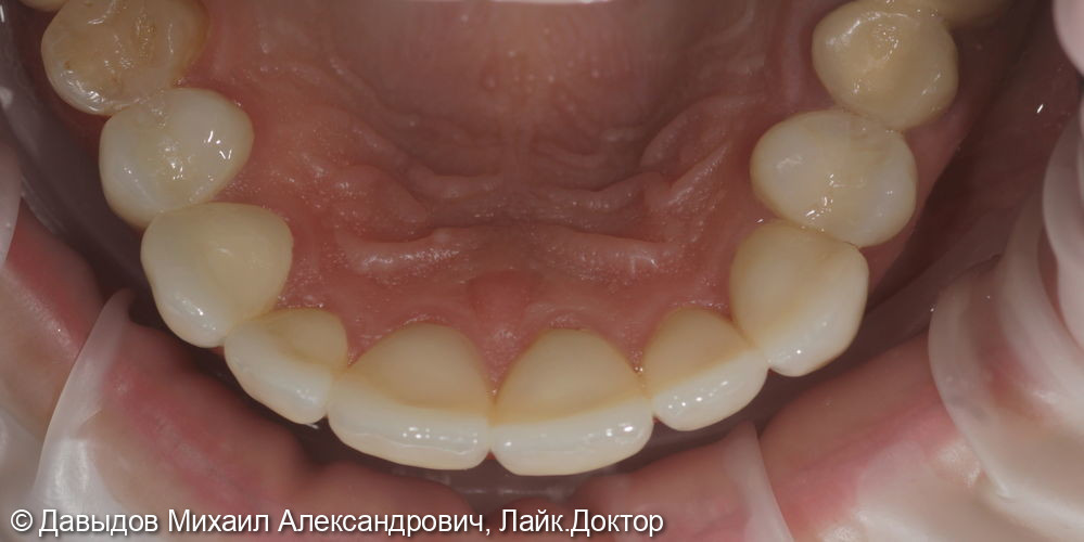 Протезирование коронками из диоксида циркония в полную анатомию - фото №7