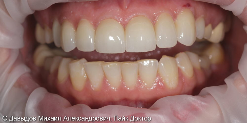 Протезирование коронками из диоксида циркония в полную анатомию - фото №9
