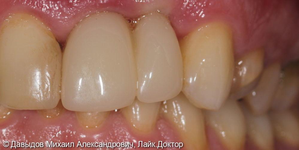 Одномоментная имплантация и временное протезирование в эстетической зоне - фото №12
