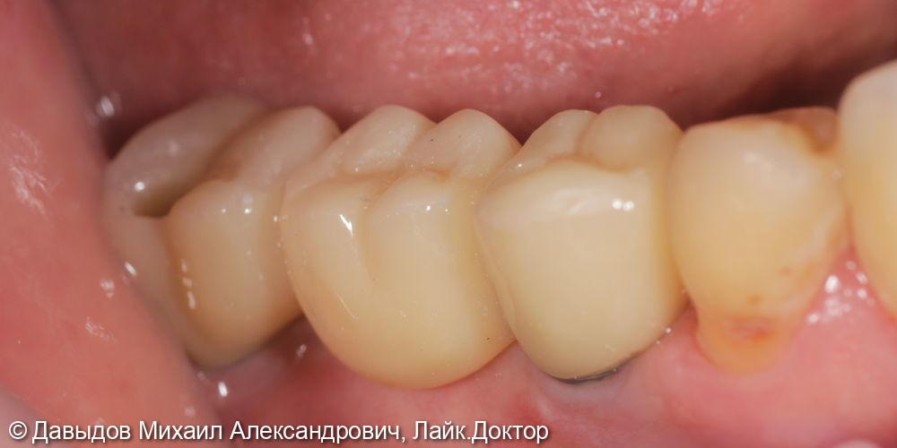 Одномоментная имплантация. Протезирование зубов на имплантах - фото №6