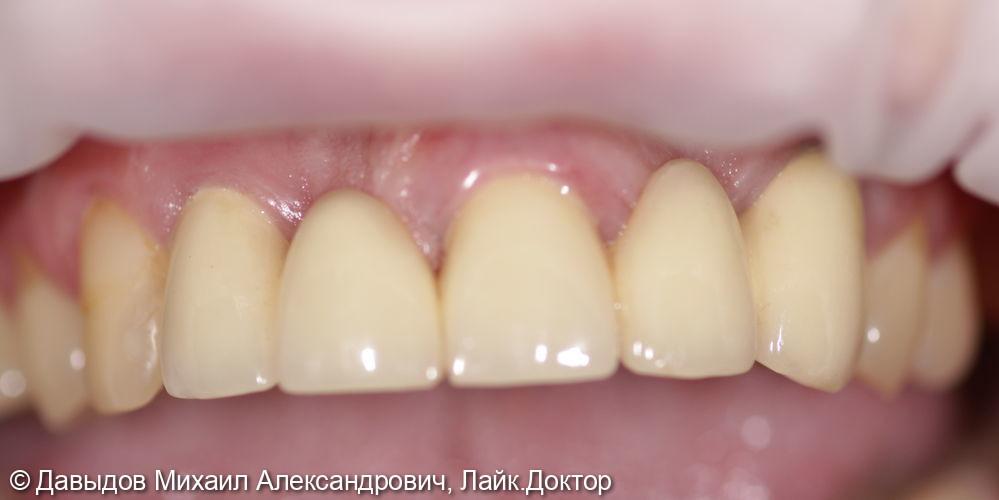 Одномоментная имплантация с немедленной нагрузкой во фронтальном отделе, протезирование металлокерамическими коронками - фото №7