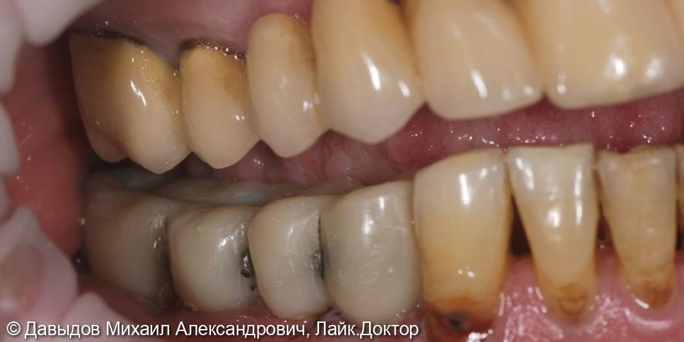 Одномоментная имплантация с немедленной нагрузкой - фото №9