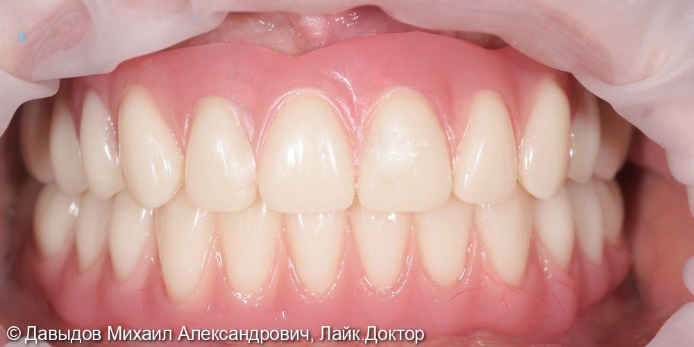 Тотальное протезирование верхних и нижних зубов металлокомпозитными протезами на имплантах - фото №14