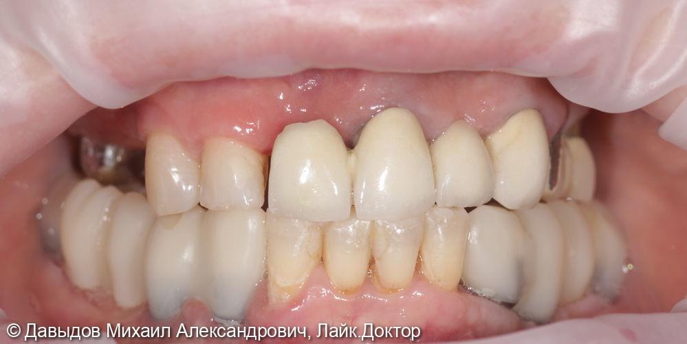 Установка 6ти имплантов с одномоментными удалениеми и костной пластикой - фото №1
