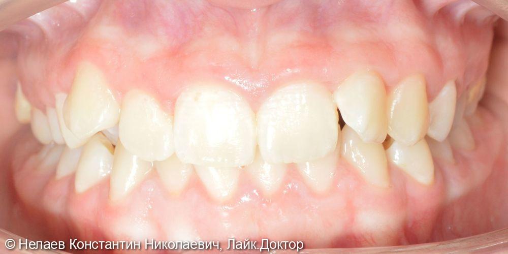 Неправильное смыкание боковых зубов - фото №1