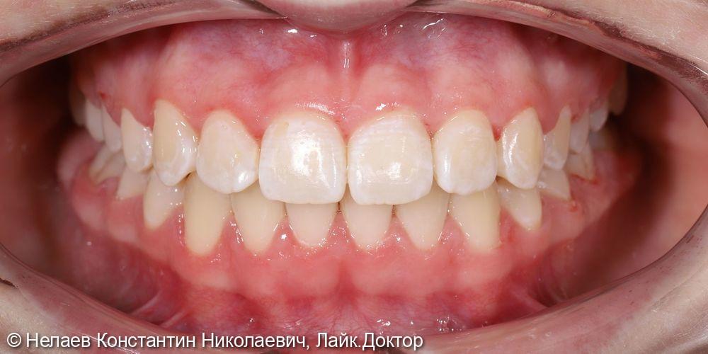 Неправильное смыкание боковых зубов - фото №10