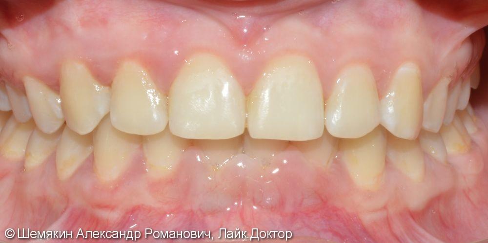 Постоянный прикус, дистальное соотношение апикальных базисов и зубных рядов - фото №10
