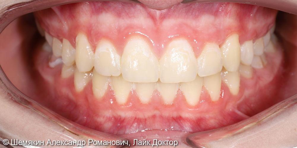 Ортодонтическое лечение - фото №11
