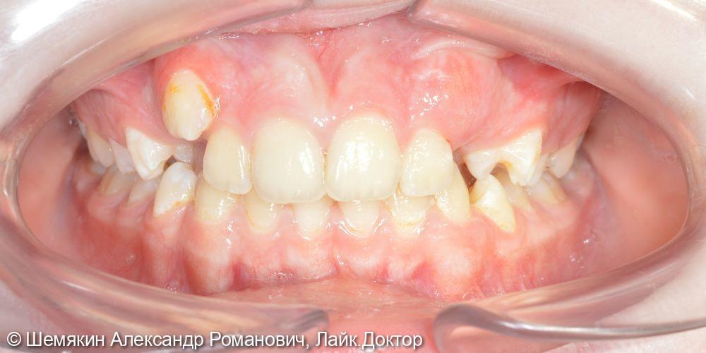 Ортодонтическое лечение - фото №1