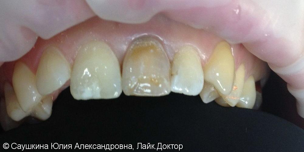 Эндокональное отбеливание и реставрация зуба - фото №1