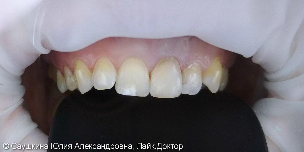 Эндокональное отбеливание и реставрация зуба - фото №2
