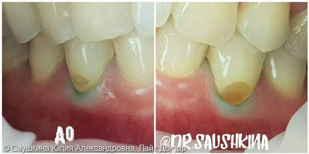 Лечение клиновидного дефекта на зубах нижней челюсти - фото №1