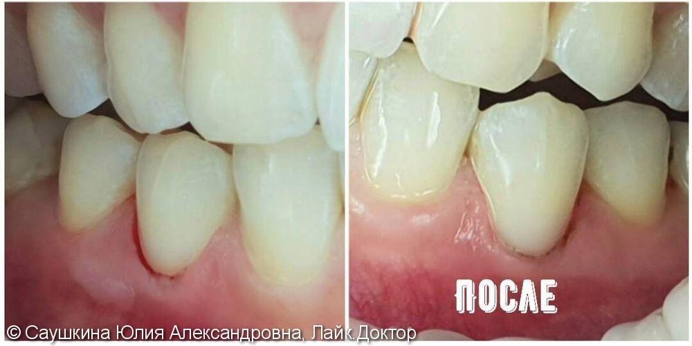 Лечение клиновидного дефекта на зубах нижней челюсти - фото №2