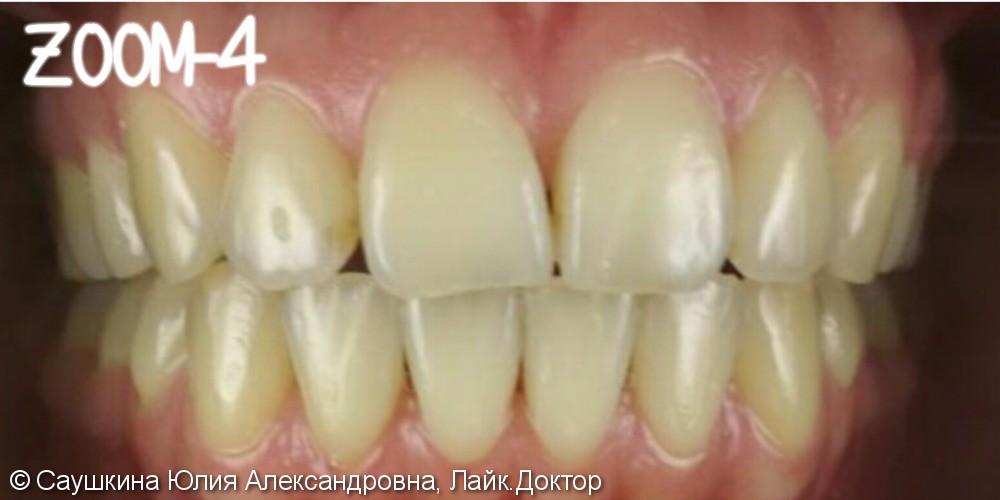 Отбеливание зубов Зум 4 поколения, до и после - фото №1