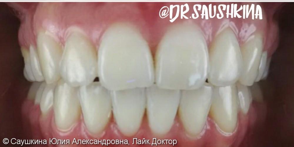 Отбеливание зубов Зум 4 поколения, до и после - фото №2