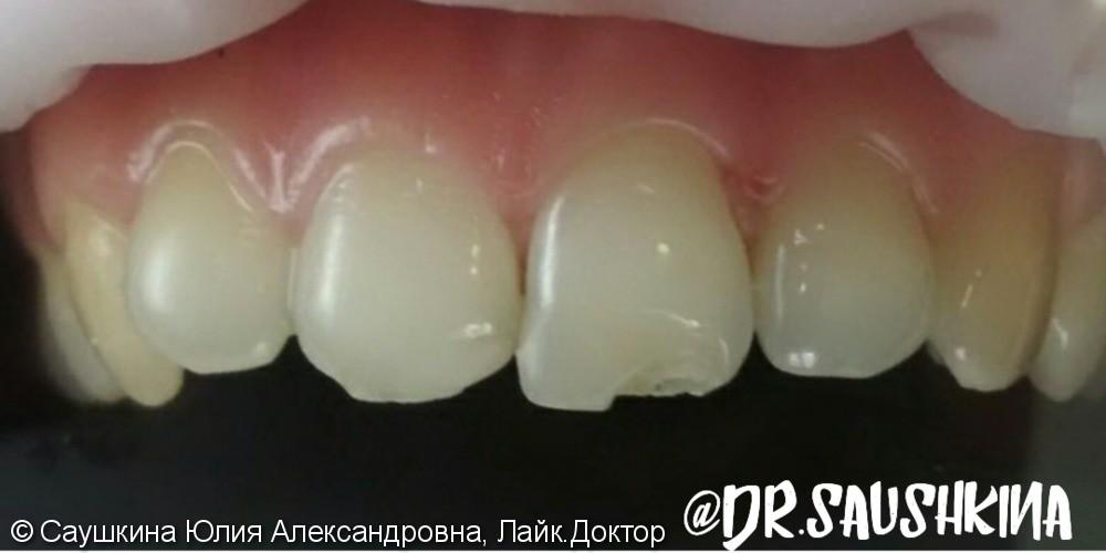 Реставрация фронтальной группы зубов материалом Estelite Asteria - фото №1