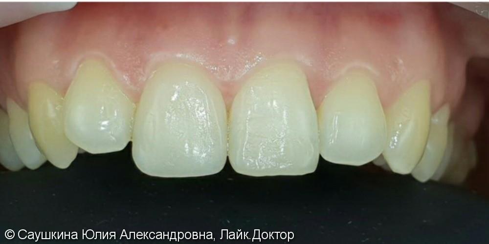Реставрация фронтальной группы зубов материалом Estelite Asteria - фото №2