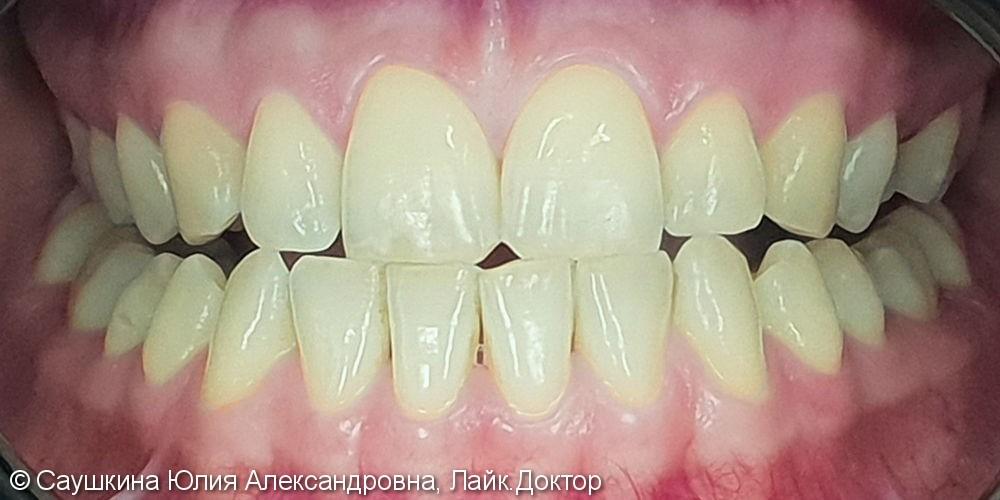 Отбеливание зубов ZOOM-4, до и результат после - фото №1