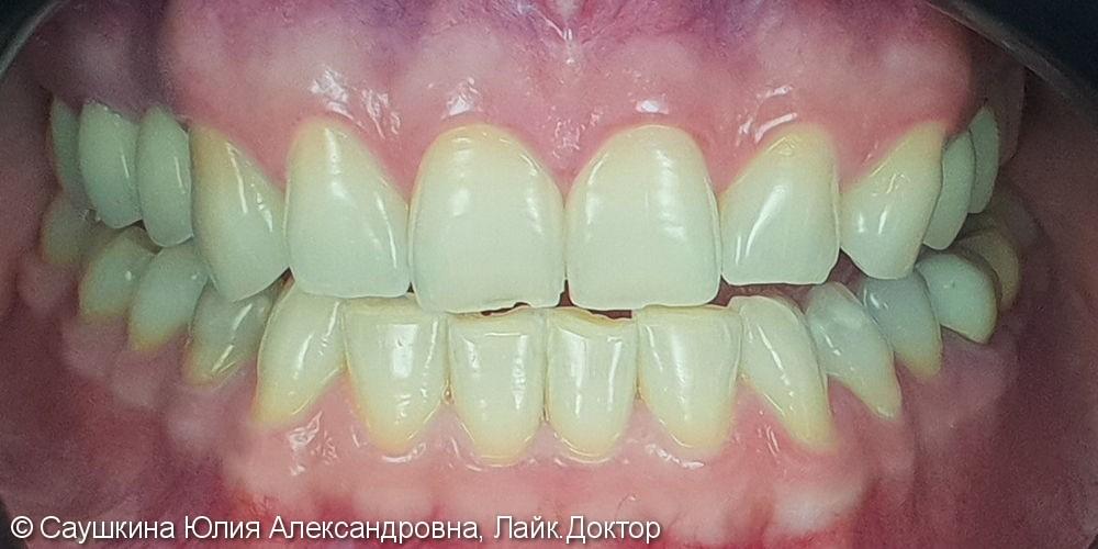 Реставрация фронтальной группы зубов и отбеливание ZOOM-4 - фото №1