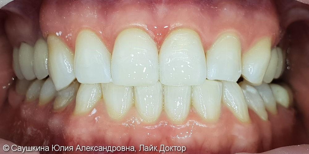 Реставрация фронтальной группы зубов и отбеливание ZOOM-4 - фото №2