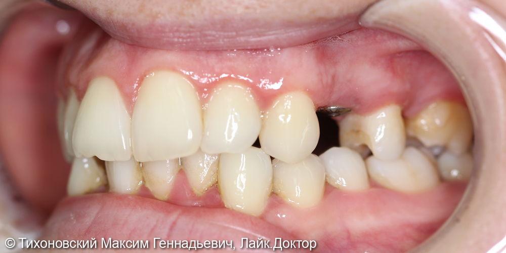 Восстановление утраченного 24 зуба имплантатов с коронкой из диоксида циркония - фото №1