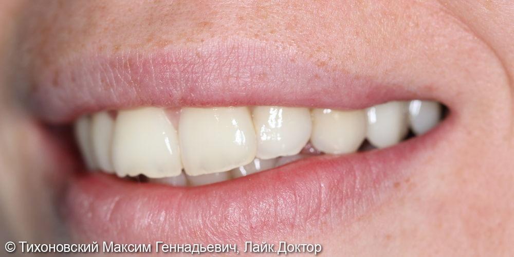 Восстановление утраченного 24 зуба имплантатов с коронкой из диоксида циркония - фото №2
