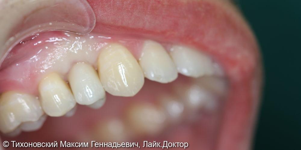 Имплантация ранее утраченного 14 зуба имплантатом Straumann и коронкой из диоксида циркония - фото №2