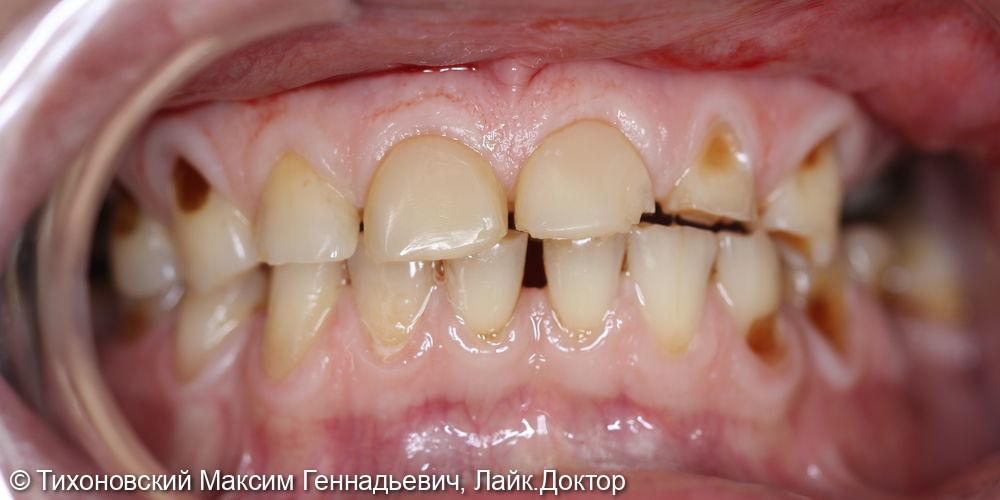 Тотальная реабилитация верхней челюсти - фото №1