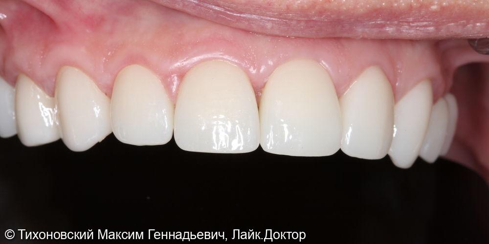 Тотальная реабилитация верхней челюсти - фото №2