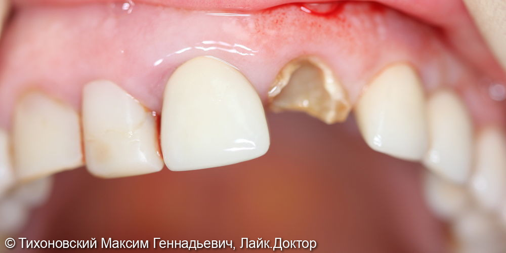 Одномоментная имплантация в переднем отделе - фото №1