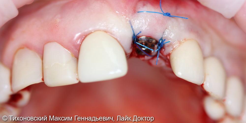 Одномоментная имплантация в переднем отделе - фото №2