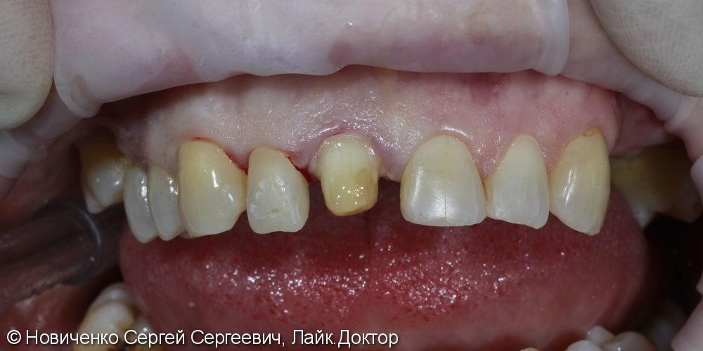 Реставрация переднего зуба - фото №1