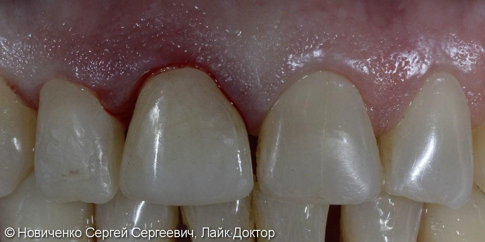 Реставрация переднего зуба - фото №3