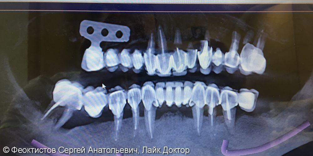 Условно-съемный протез на 6-ти имплантах (all-in-6), до и после - фото №1