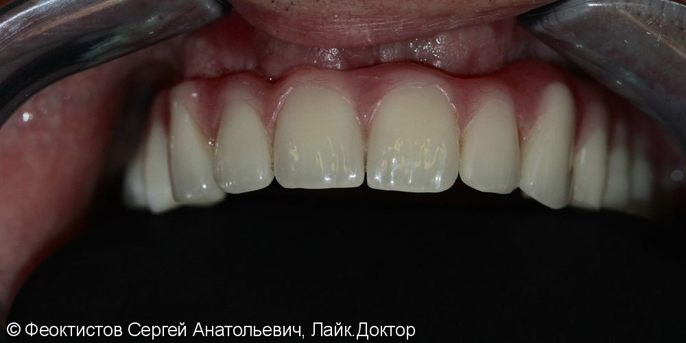 Условно-съемный протез на 6-ти имплантах (all-in-6), до и после - фото №4