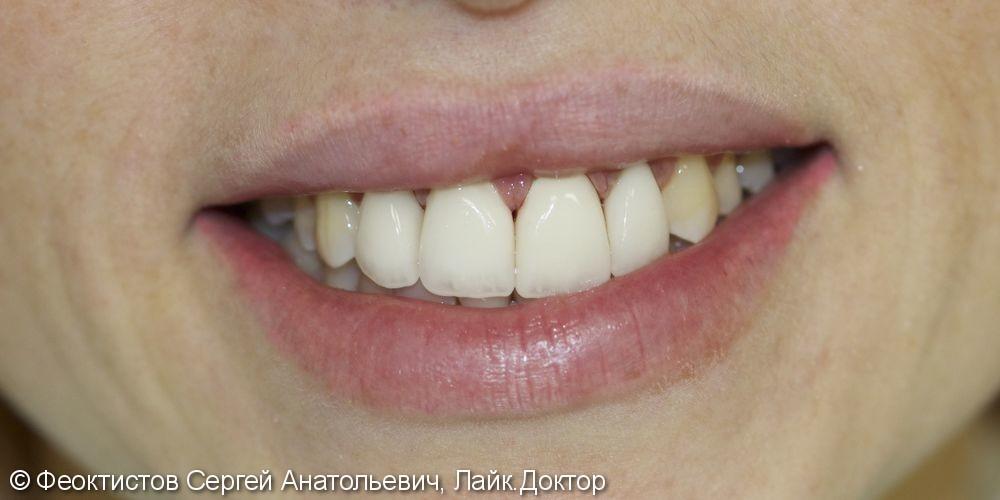 Устранение рецессии. Ортодонтическое лечение. Керамические виниры - фото №19