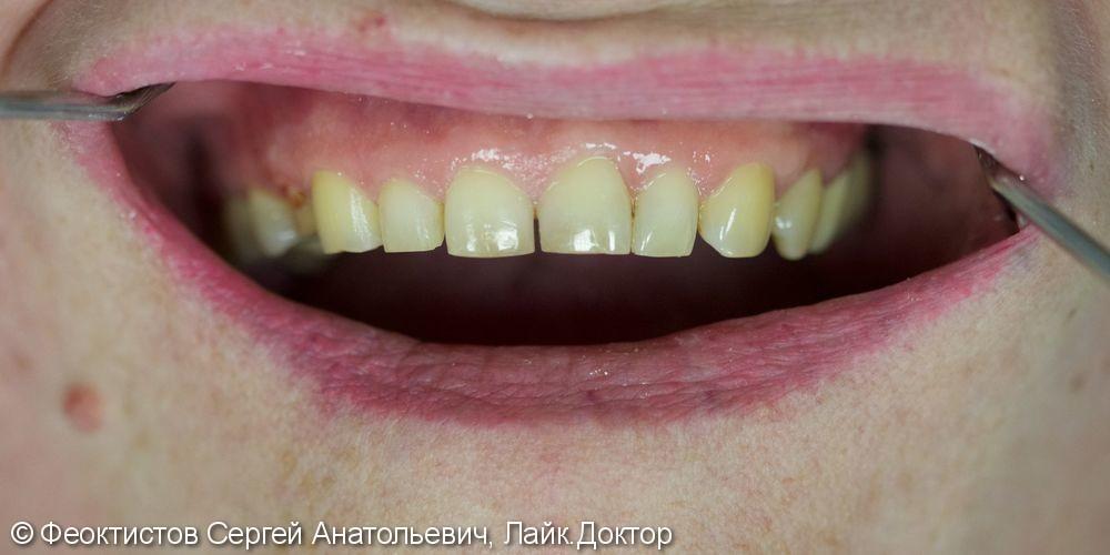 Керамические виниры (1.4-2.4 зубы) - фото №1