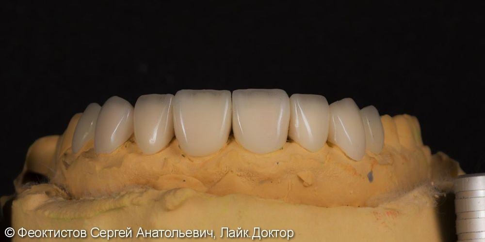 Керамические виниры (1.4-2.4 зубы) - фото №10