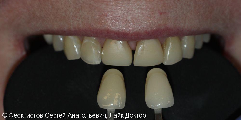Восстановление 2-х передних зубов керамическими винирами/коронками Е-мах 11, 21 - фото №1