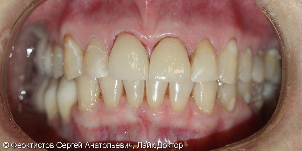 Восстановление 2-х передних зубов керамическими винирами/коронками Е-мах 11, 21 - фото №3