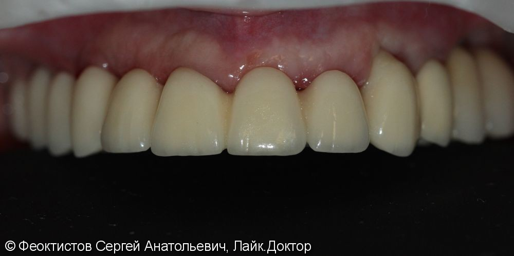 Полное отсутствие зубов, металлокерамический протез на имплантах (all-on-7) - фото №3