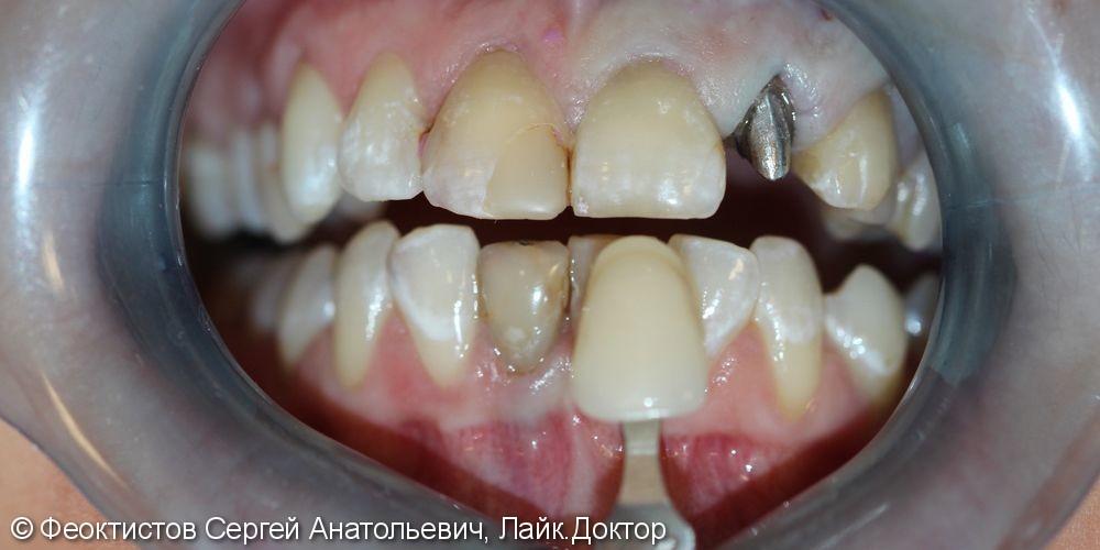 Керамические коронки/виниры на 5 передних зубов - фото №1