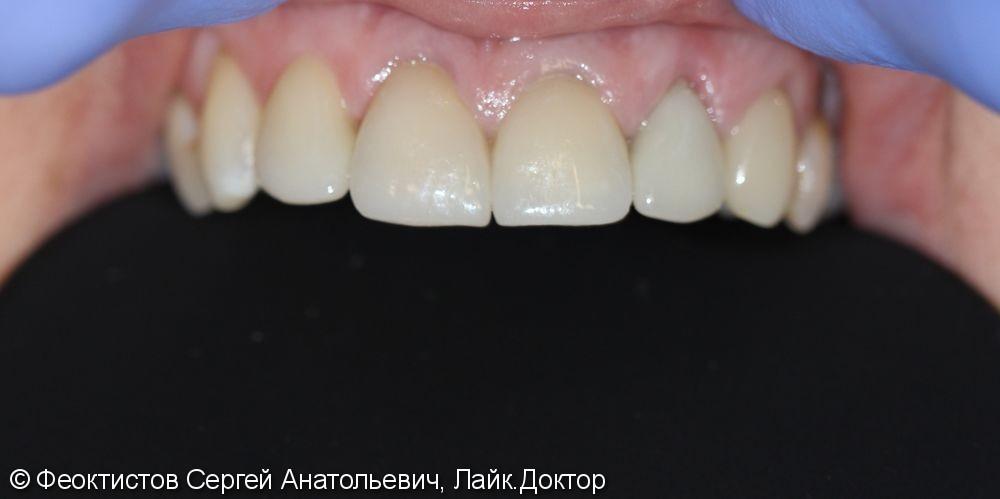 Керамические коронки/виниры на 5 передних зубов - фото №2