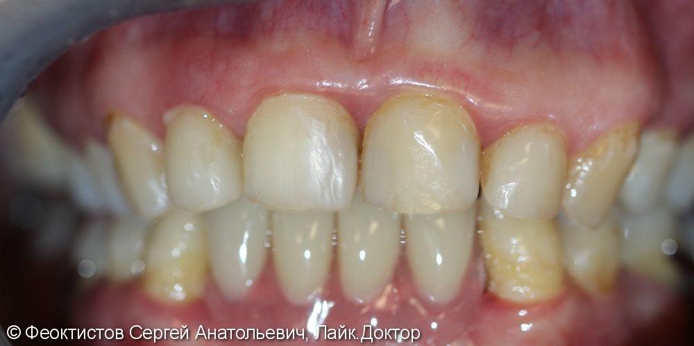 Протезирование съемным (бюгельным) протезом на нижней челюсти - фото №5