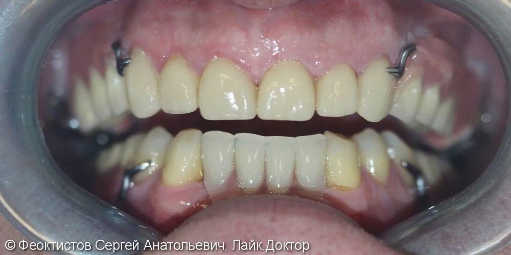 Керамические виниры 13-23, терапевтическая подготовка ( лечение зубов) Бюгельные протезы - фото №4